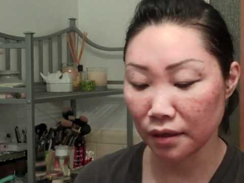 TCA Peel Updates - Days 1 To 4 And Sunscreen Application Demo