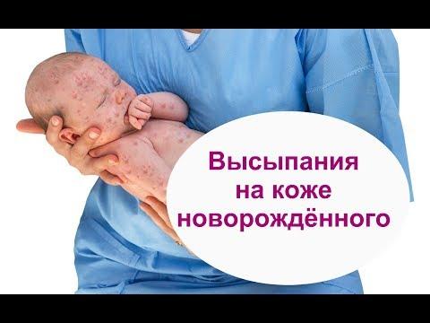 СЫПЬ на коже новорождённого: опасно или нет? / ПРИЧИНЫ, ЛЕЧЕНИЕ