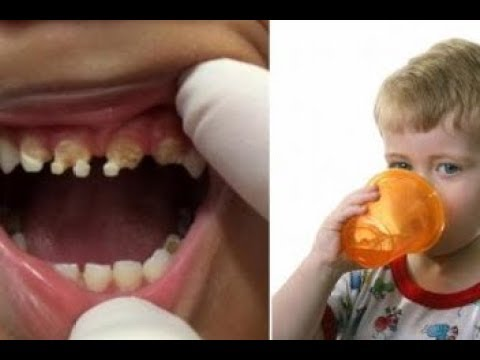 parents-shocked-by-what-caused-this-child's-massive-tooth-decay