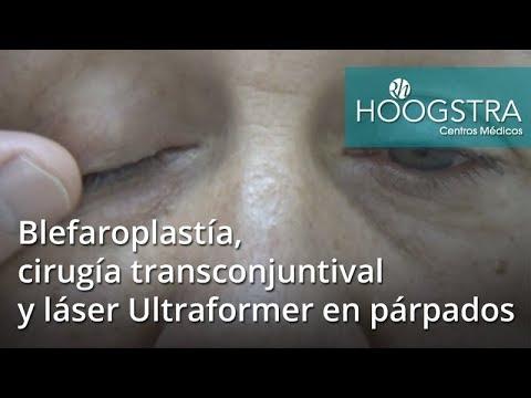 Blefaroplastía, cirugía transconjuntival  y láser Ultraformer en párpados (17089)