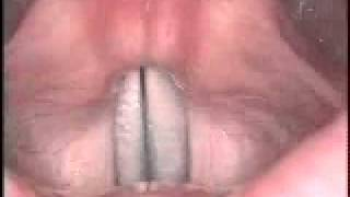 Stroboscopy: Rigid: vocal slide down in female