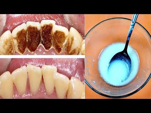Sie müssen nicht zum Zahnarzt gehen Entfernen Sie Zahnbelag und Zahnstein nur mit dieser Mischung