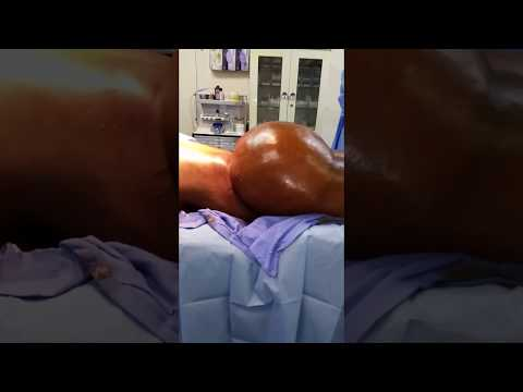 Very Large Buttock Produced by Dr. Hughes - Over 2000 cc of Fat Per Buttock with Brazilian Buttlift