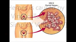Genital Herpes Treatment - Breakthrough Herpes Simplex Treatment Found !