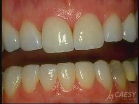 Popular Dental bonding & Cosmetic dentistry videos