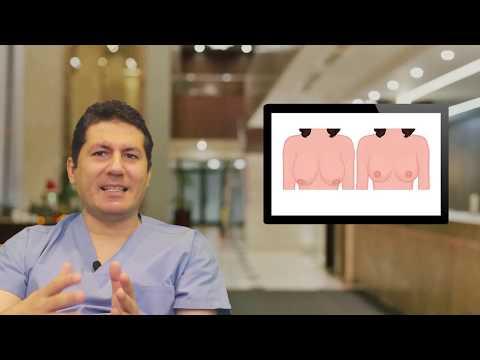 Meme Küçültme Breast Reduction