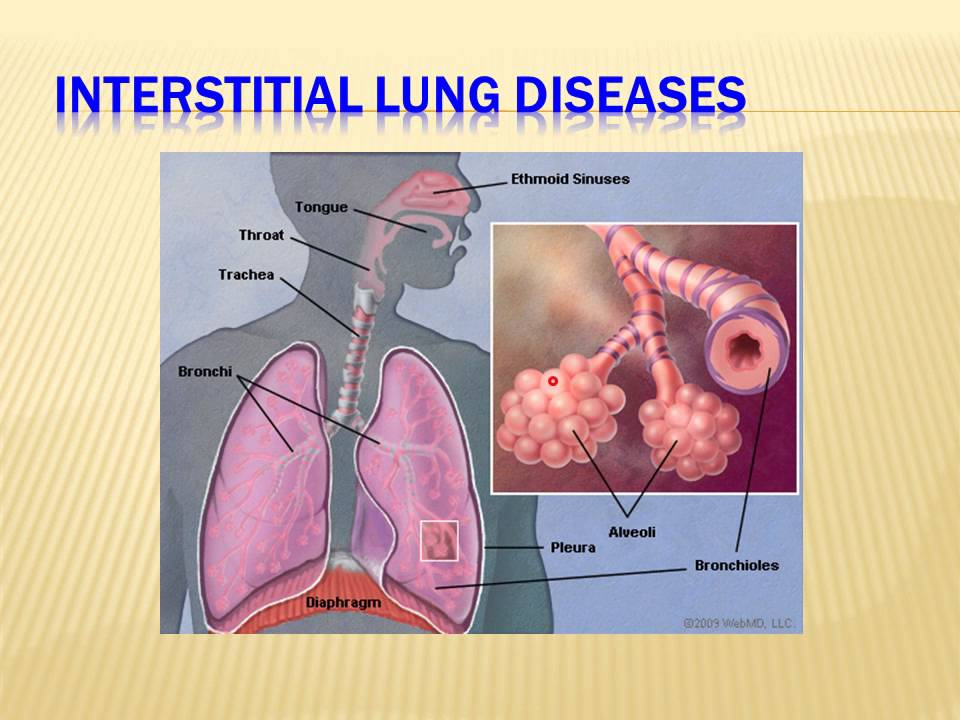 Case 578 * Interstitial Lung Disease * Dr. Mohammad Akram Babury, MD ...