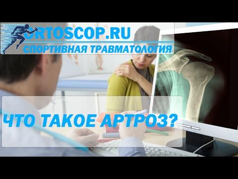 Артроз: причины, симптомы, лечение артроза в Санкт-Петербурге