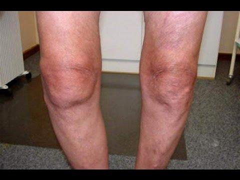Гонартроз коленного сустава 1, 2, 3 степени – виды