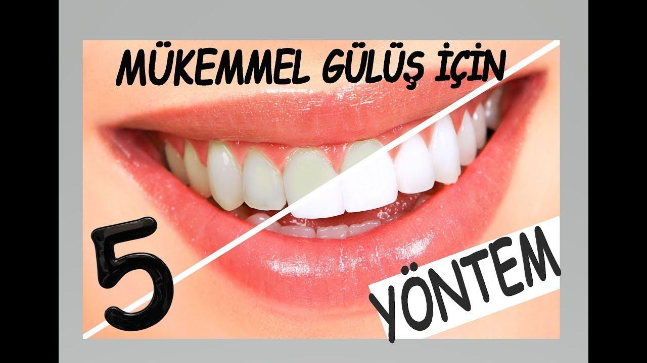Evde Diş Beyazlatma İçin En Etkili 5 Yöntem