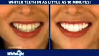 Видео обзор-Отбеливатель зубов Dent 3D White курьером