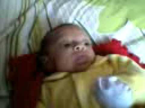 Lucas Emanuel com um mês depois do banho