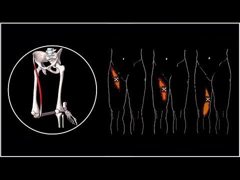 Внутренняя мышца бедра болит