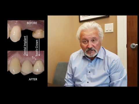 BEFORE & AFTER DENTAL IMPLANT: Missing Upper Premolar Tooth | Milton, Oakville, Mississauga