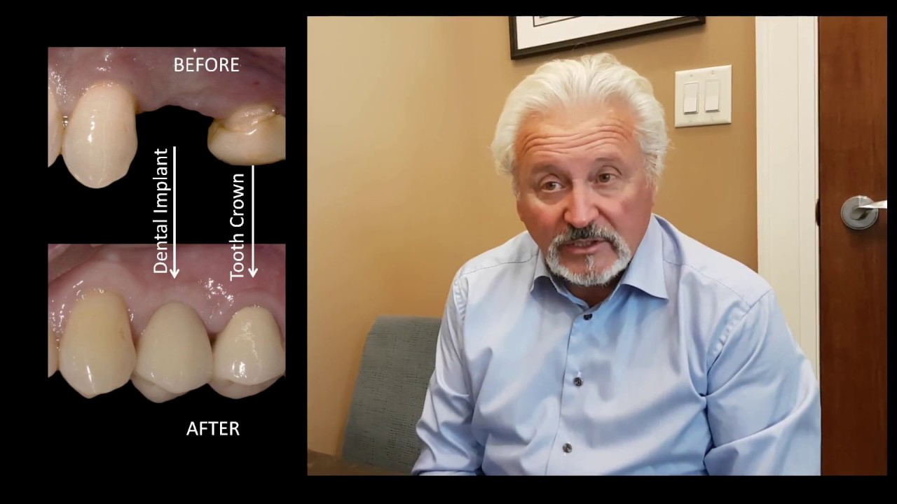 BEFORE & AFTER DENTAL IMPLANT: Missing Upper Premolar Tooth | Milton, Oakville, Mississauga