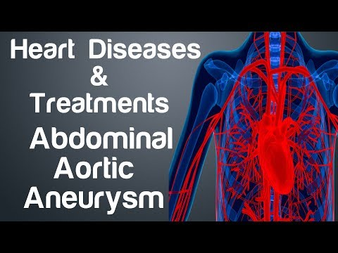 Abdominal Aortic Aneurysm Treatment - Heart Diseases and Treatments