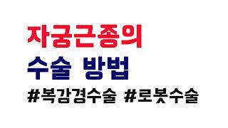 [조준형TV]복강경수술,개복수술,로봇수술_자궁근종수술방…