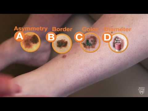 Mayo Clinic Minute Raise Your Skin Cancer Iq Youtube