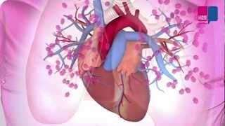 Longembolie - wat gebeurt er in je longen?