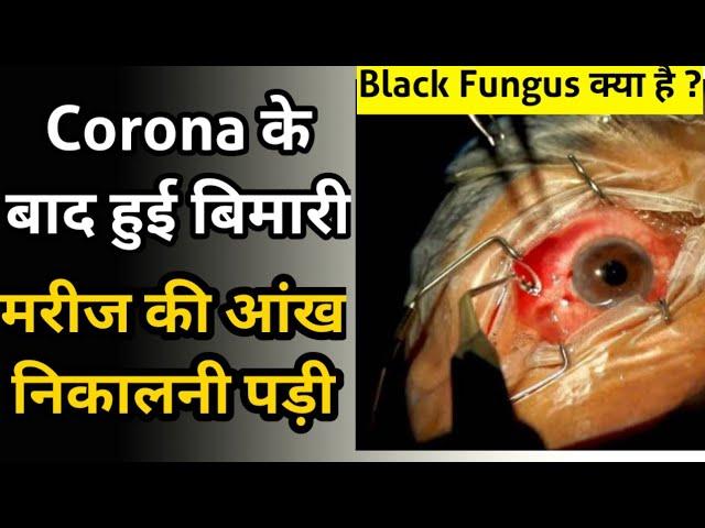 Corona के बाद नई बीमारी , Black Fungus जिसमे मरीज की आंख निकालनी पड़ी 😞 | What is Black Fungus ?