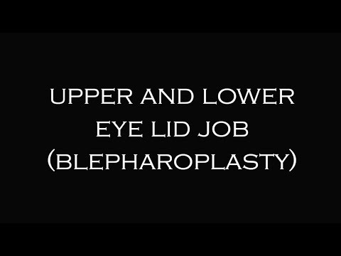Blepharoplasty | Plastic Surgeon Dr. Katzen Beverly Hills | Los Angeles | Las Vegas