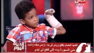 طفل يروي تفاصيل قطع معلمة 10 أوردة في يده «فيديو»