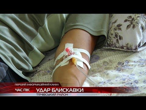 У горах Закарпаття блискавка влучила неподалік групи туристів: двоє у лікарні