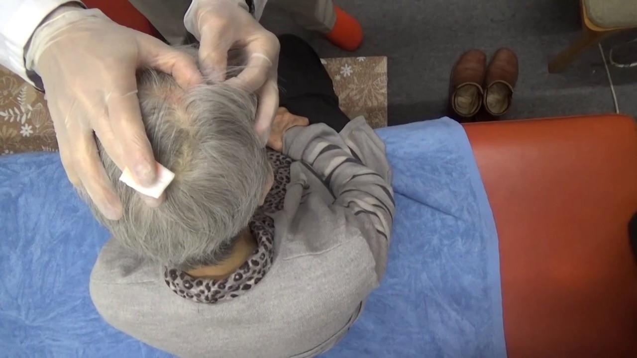 帯狀皰疹後神経痛 頭部刺絡 - YouTube
