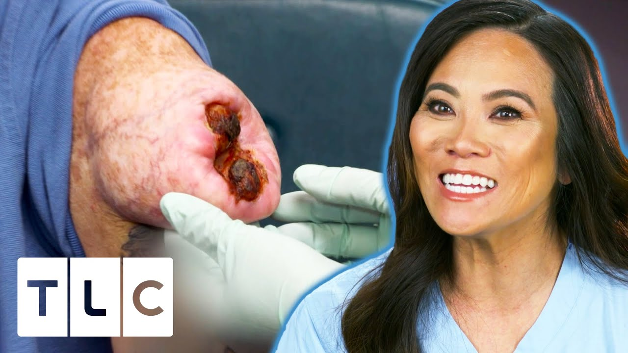 Download Dr. Lee Removes An Open Wounded Lipoma | Dr. Pimple Popper Pop Ups