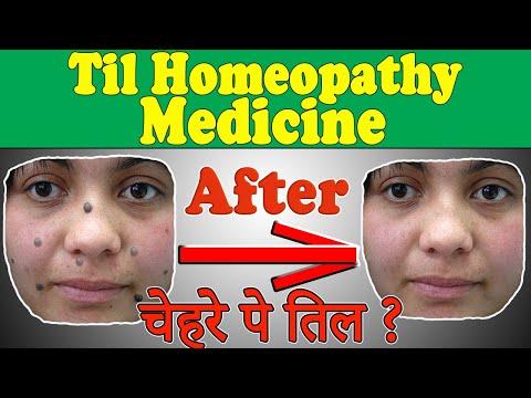 Homeopathic Medicine for Black Mole, Til Medicine (चेहरे पे तिल) - Mole Removal Homeopathic Medicine