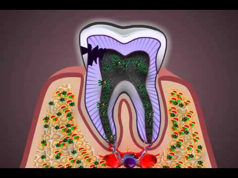 What is Pulpitis