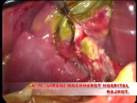 Laparoscopic cholecystectomy for cholecystitis