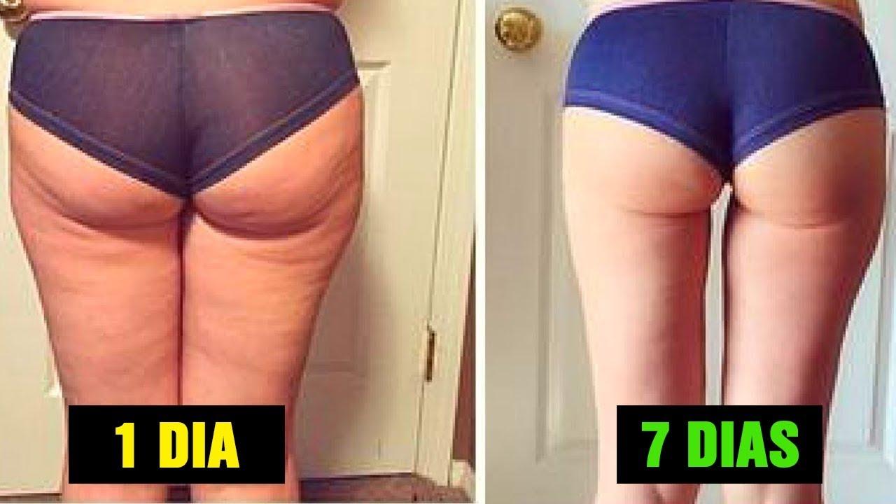 como perder peso nas coxas