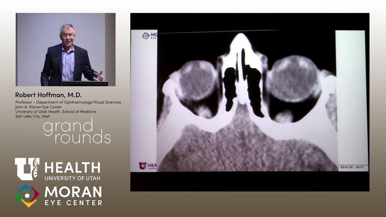 Interesting Pediatric Ophthalmology Cases (Hoffman) - YouTube