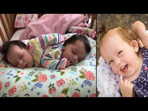 doctors-gave-these-conjoined-twins-24-hours-to-live,-but-two-years-on-they're-a-living-miracle