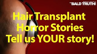 The Bald Truth for Friday August 30th, 2019 - Hair Transplant Horror Stories