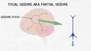 An epileptic seizure can occur when neurons within the brain start firing abnormally. The firing or .