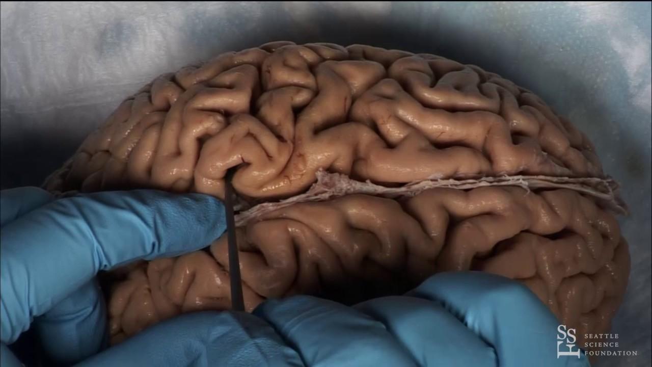 Lab Demo - Practical Anatomy of the Brain Sulci & Gyri by Guilherme ...