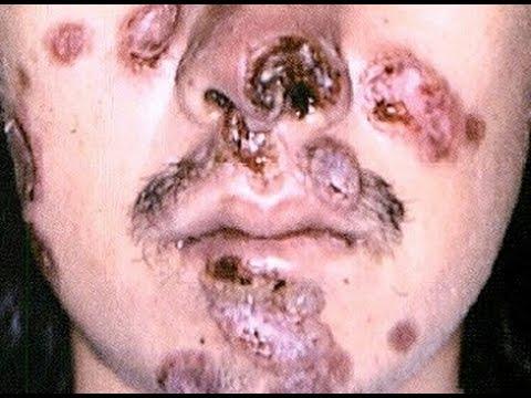 【閲覧注意】梅毒の解説と症例写真