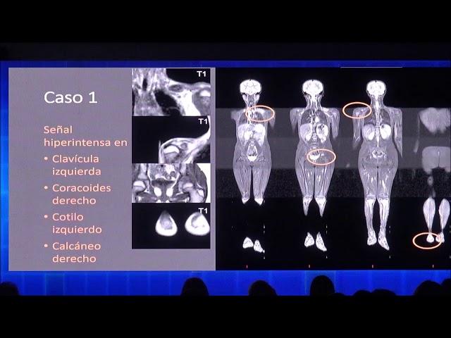 Resonancia magnética de cuerpo entero en pediatría. Inés Mannes