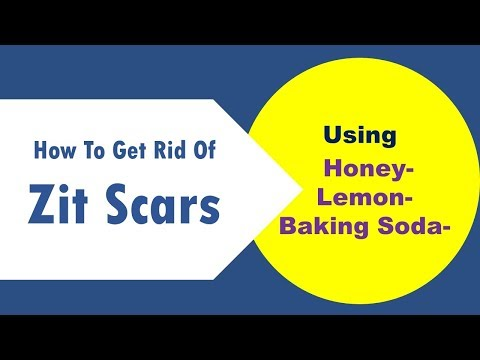 how to get rid of zit scars using Honey ,Lemon and Baking Soda