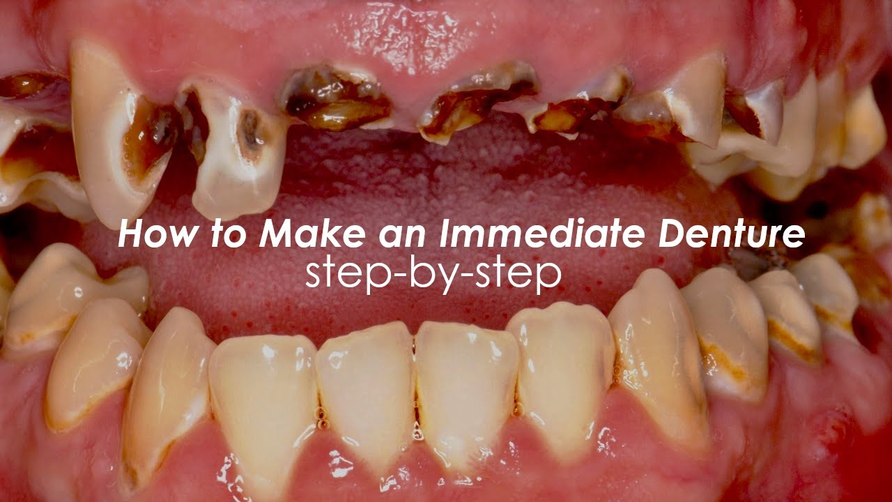How to Make an Immediate Denture, Step-By-Step - YouTube