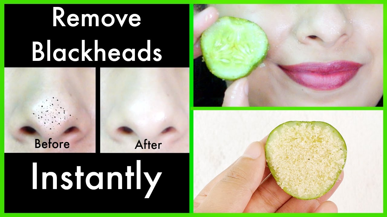 Magic Remedy to Remove Blackheads from Nose at Home - YouTube