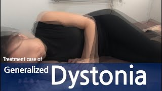 Generalized Dystonia / Abdominal dystonia / Immediate response within first treatment / 전신 사경증
