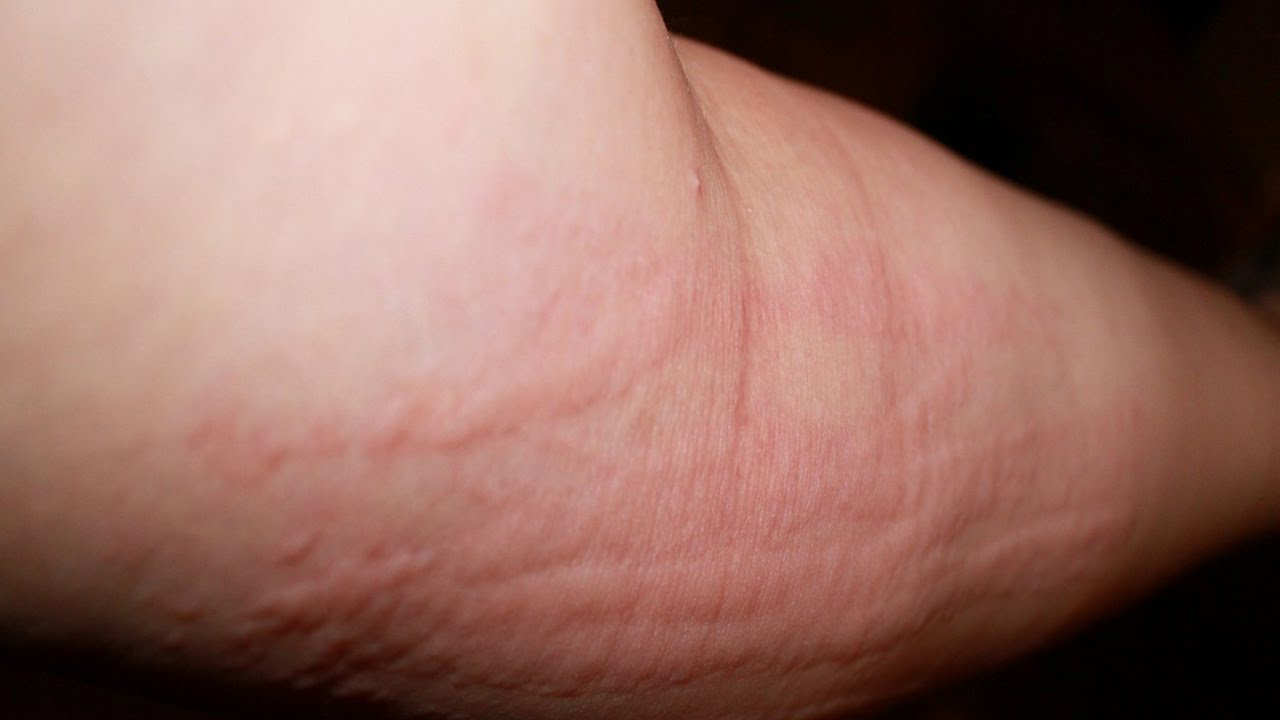 Viral Rashes. Rashes and Itchy Skin. Causes and treatment ...
