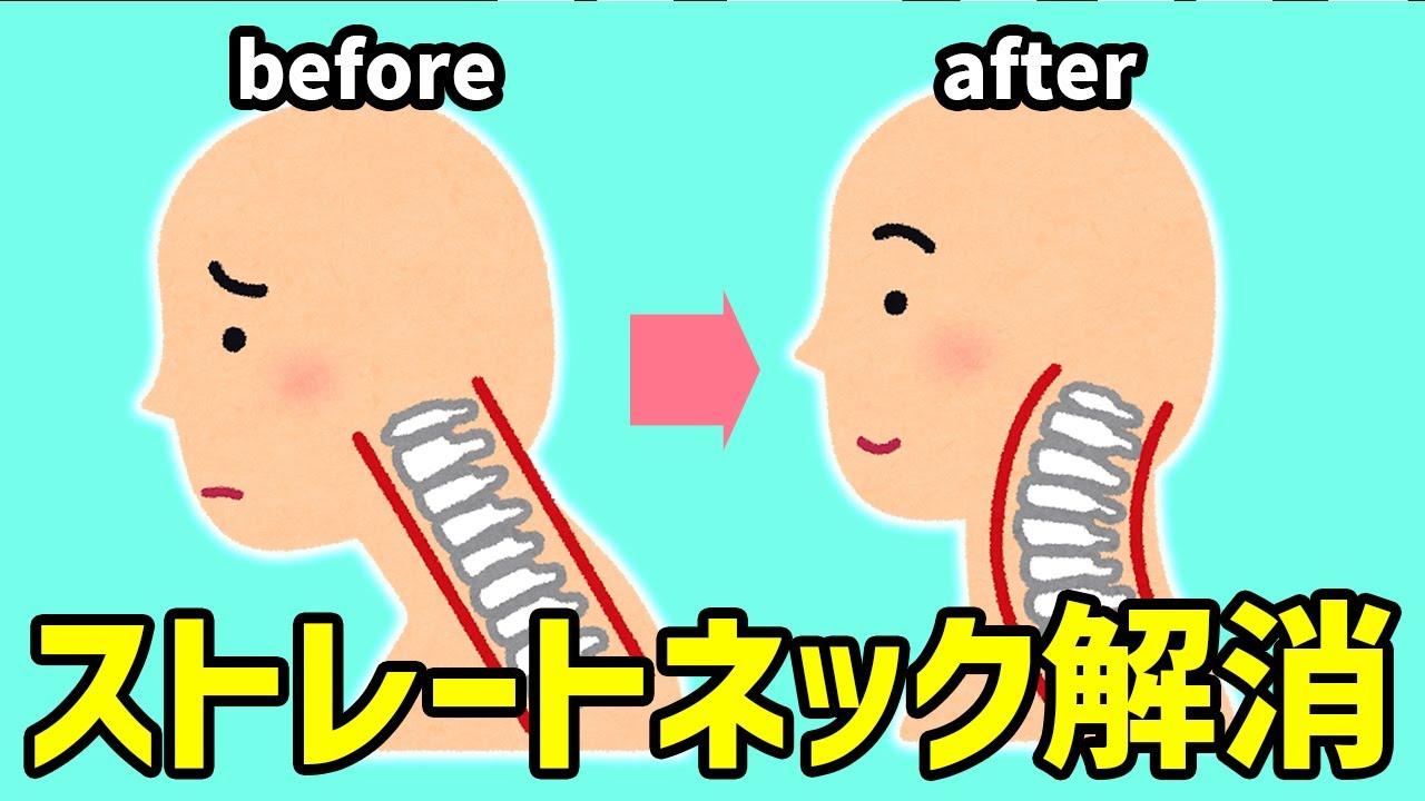 【首コリ・肩こり】ストレートネック改善タオルストレッチ【辛い痛み解消】
