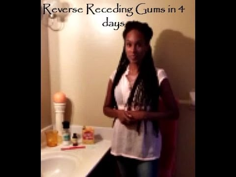 How to reverse receding gums and sensitivity in 4 days!!