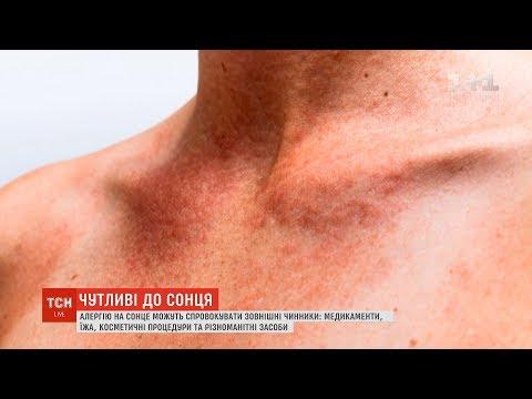 Що таке алергія на сонце та як її уникнути