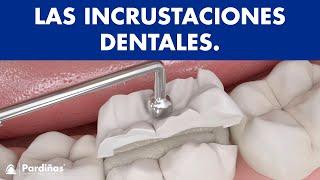 Incrustaciones dentales ©