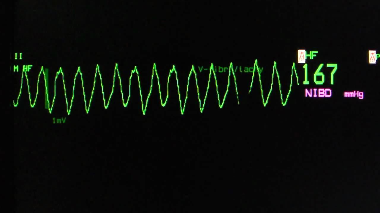 ventricular tachycardia torsade de pointes on an ecg